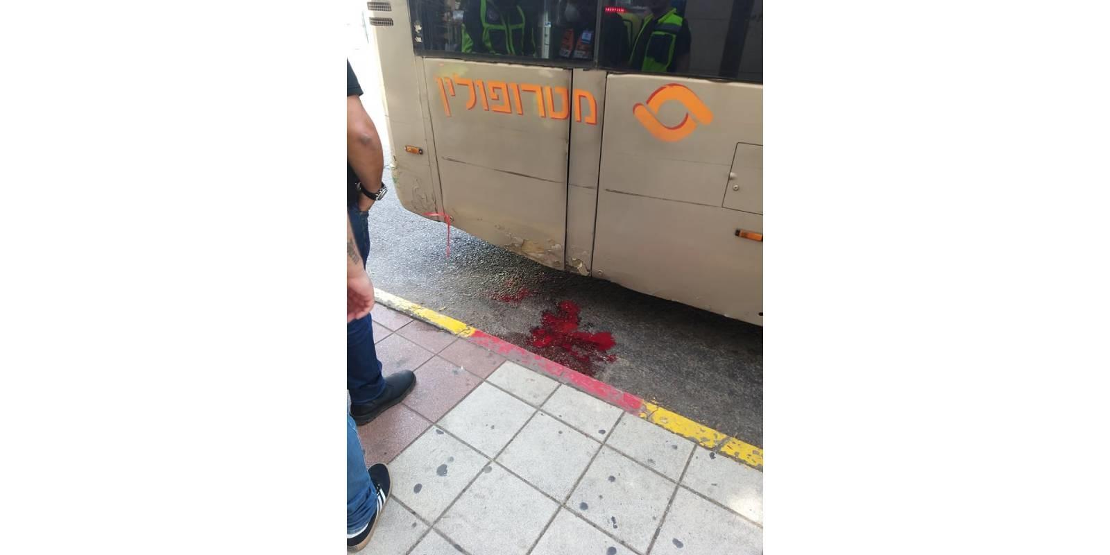 """רגל ימין נכרתה לאחר שניצולת השואה נדרסה ע""""י האוטובוס, הנכדה זועקת """"עשית את טעות חייך"""""""